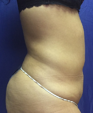 Lipo of abdomen & flanks Before