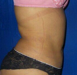 Lipo of abdomen & flanks After
