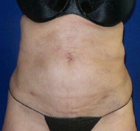 Lipo of abdomen and flanks After