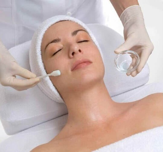 getlaserruislip.co_.uk-Chemical-Peels-in-Ruislip-min