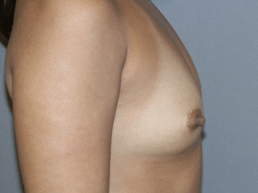 Side View Breast Augmentation Side View Before
