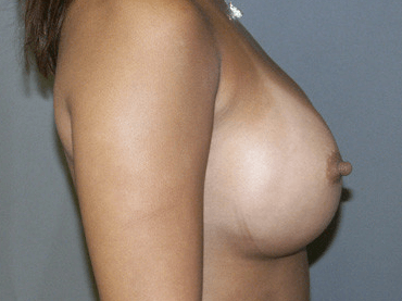 Side View Breast Augmentation Side View After 3 Months