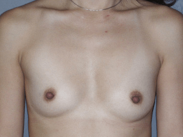 Front View Before Breast Augmentation