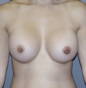Front View 3 Months After Breast Augmenta