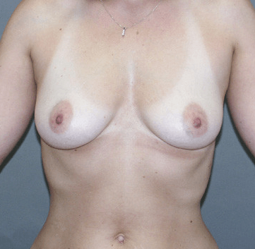 Breast Augmentation by Nikko Before
