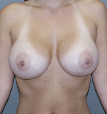 Front View Breast Augmentation 3 Months After Procedure