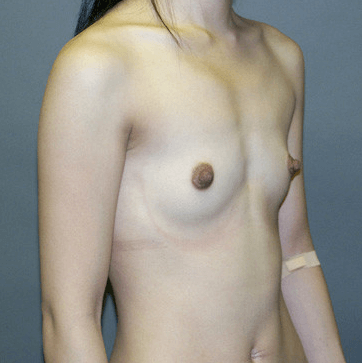 Breast Augmentation by Nikko Before Breast Augmentation
