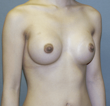 Breast Augmentation by Nikko 3 Months Post Procedure