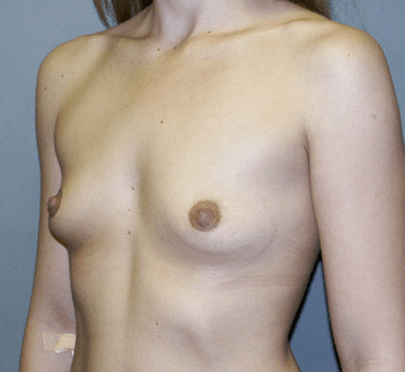 Side View Breast Augmentation Before Breast Augmentation