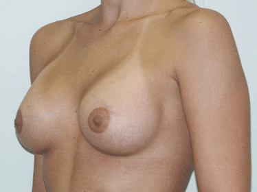 Side View Breast Augmentation Post Breast Augmentation