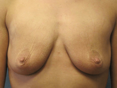 Mastopexy / Breast Lift Before