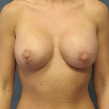 Mastopexy / Breast Lift After