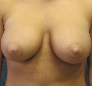 Breast Reduction / Revision Before Breast Revision