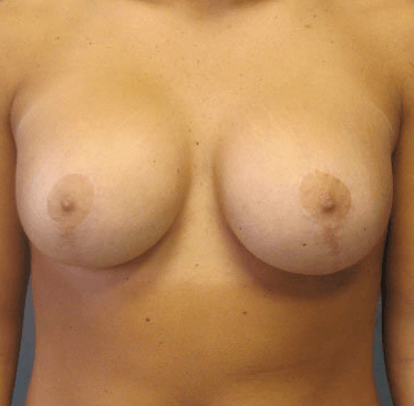 Breast Reduction / Revision After