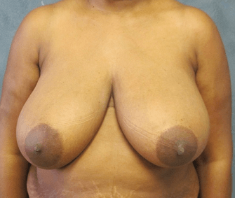 Breast Reduction by Dr. Nikko Before