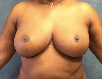 Breast Reduction by Dr. Nikko After