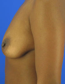 Breast Augmentation by Nikko Before Breast Aug & Lift