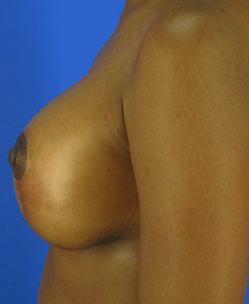 Breast Augmentation by Nikko After