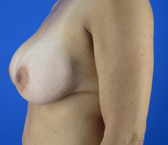 Breast Lift & Augmentation After Side View