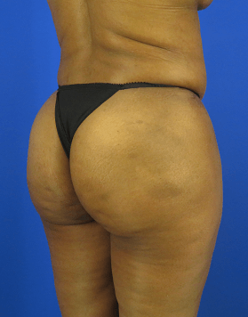 Brazilian Butt Lift (BBL) Side View of After BBL