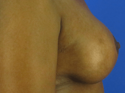 Post Pregnancy Breast Lift After Side Profile of Lift