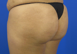 Enhanced Brazilian Butt Lift 6 Months Prior to Surgery