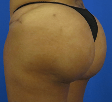 Enhanced Brazilian Butt Lift 6 Months Post BBL Surgery