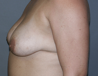 B&A Post Pregnancy Breast Lift Before Side View