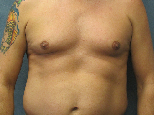 Front View of Male Liposuction Before Male Liposuction