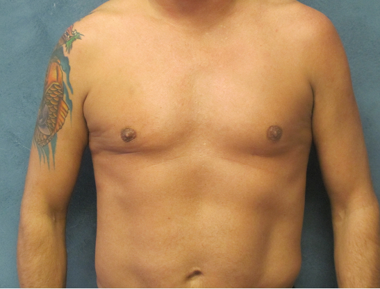 Front View of Male Liposuction 3 Month After Male Liposuction