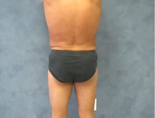 Back View of Liposuction 3 Months After Liposuction