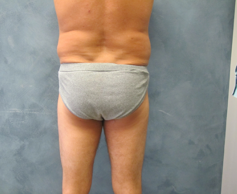 Back View of Liposuction Before Liposuction
