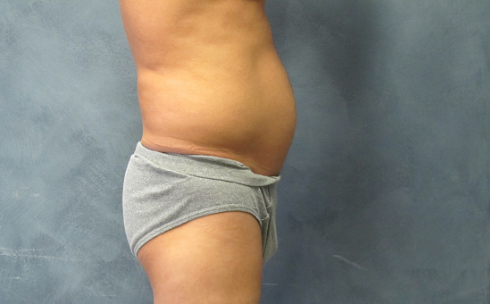 Side View Male Liposuction Before Male Liposuction