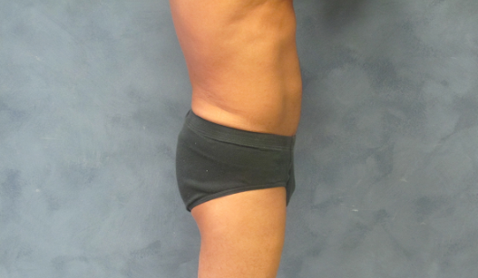 Side View Male Liposuction After Male Liposuction