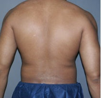 Male Liposuction Before