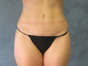 Front View of Tummy Tuck 3 Months After Tummy Tuck