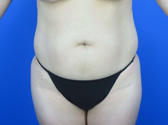 Front View of Body Contour Before
