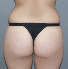 Liposuction to Contour Waist Before Liposuction