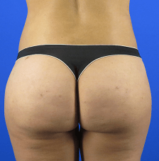 Liposuction to Contour Waist After Liposuction