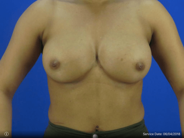 Breast Augmentation - Front Vi Before