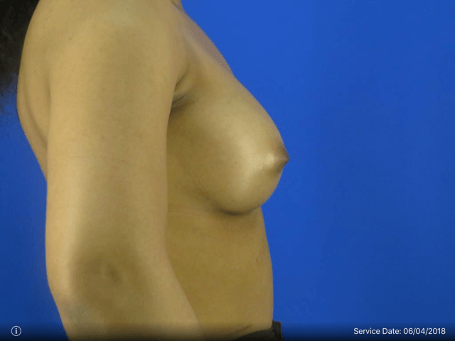 Right Side View Revision Before Breast Revision