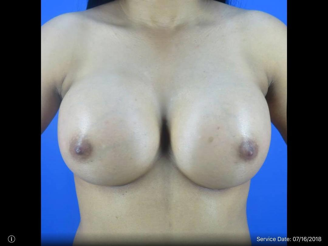 Breast Augmentation - Front Vi After