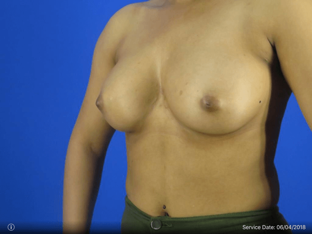 Left Side View Revision Before Breast Revision