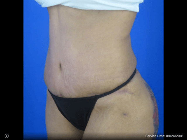 Abdominoplasty with Dr. Nikko After