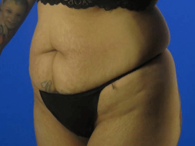 Abdominoplasty with Dr. Nikko Before