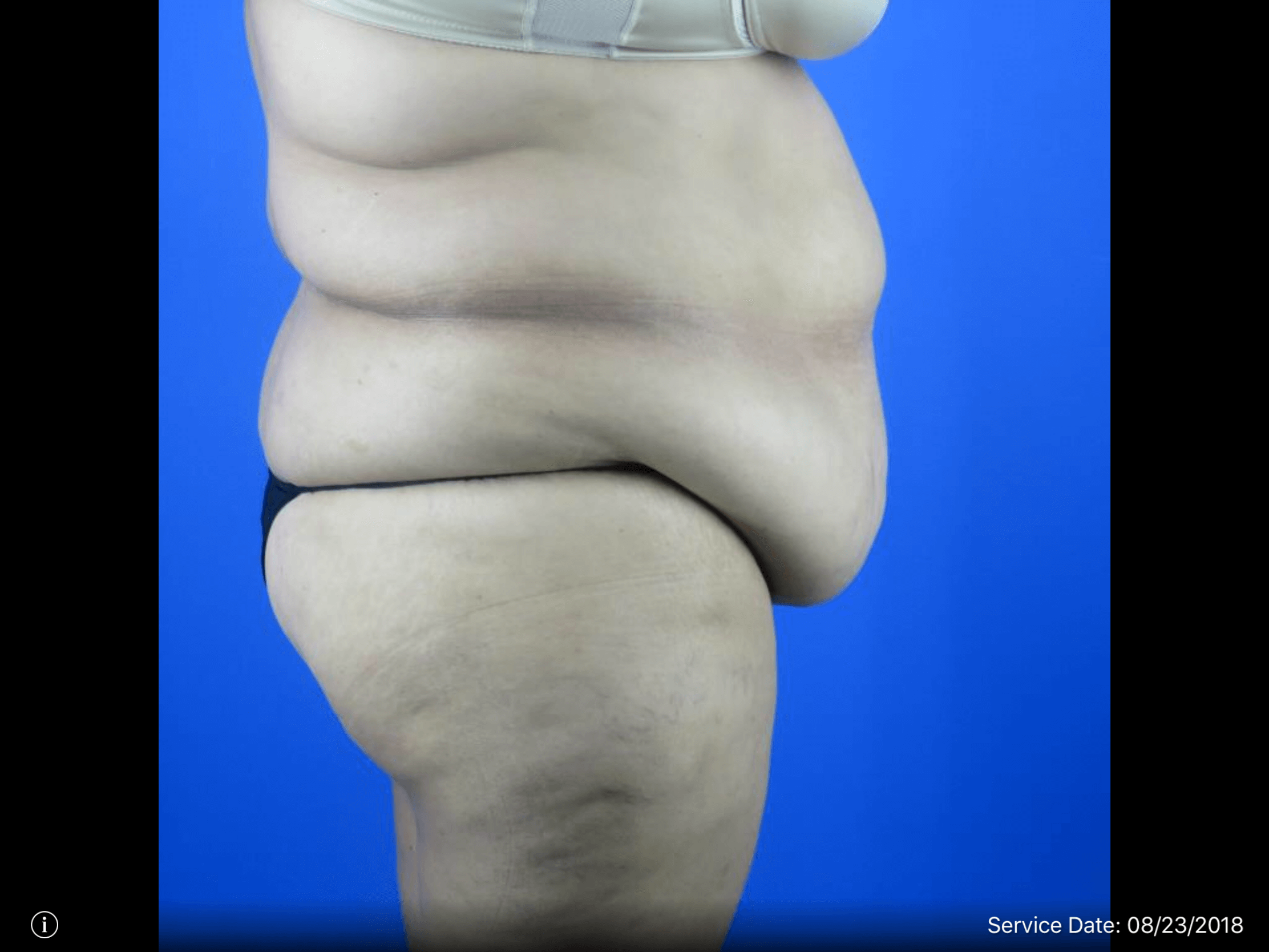 Side View of Tummy Tuck + Lipo Before Tummy Tuck & Lipo