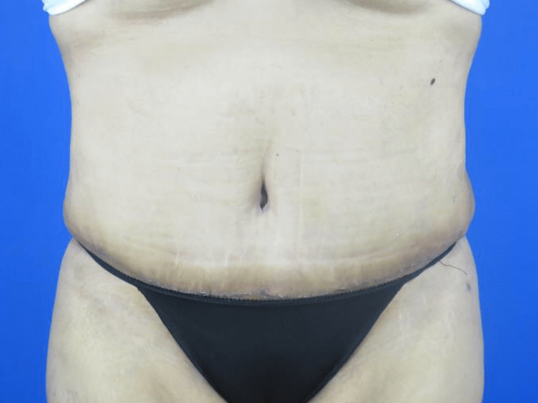 Front View Tummy Tuck + Lipo 3 Months Post TT Procedure