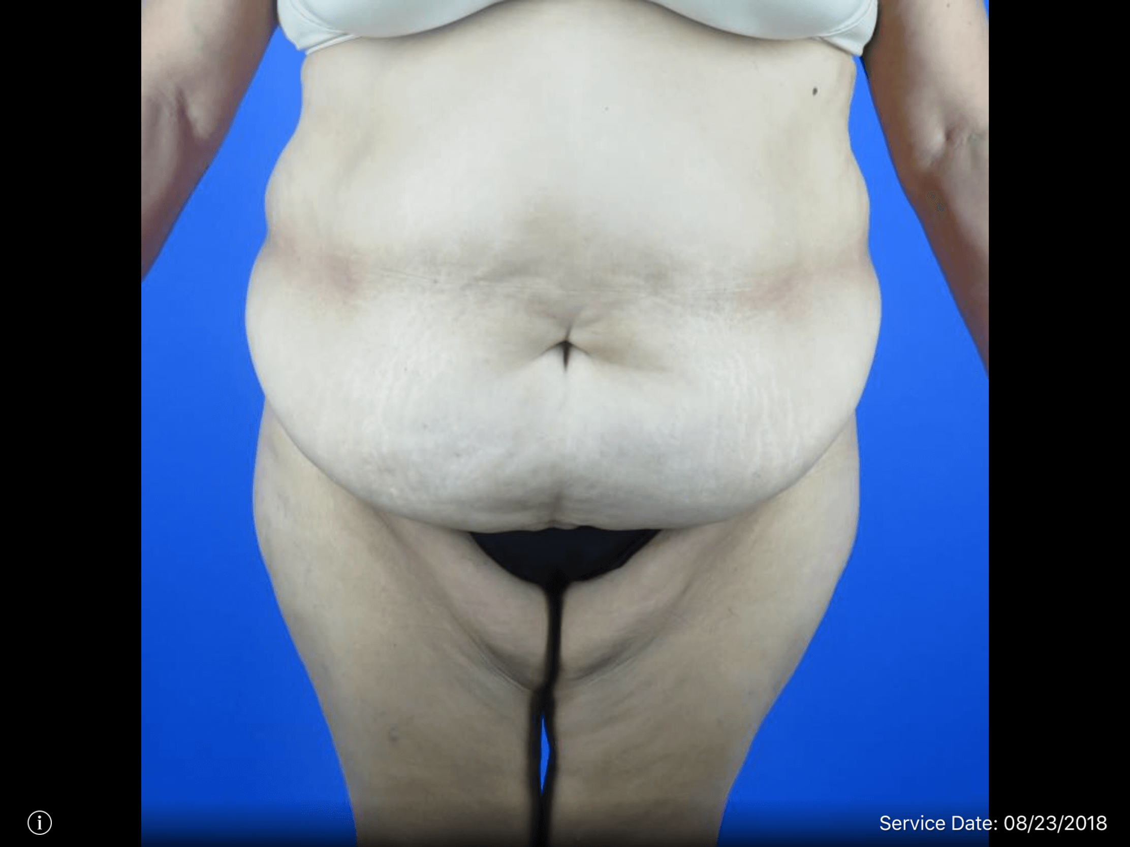Front View Tummy Tuck + Lipo Before Tummy Tuck & Lipo