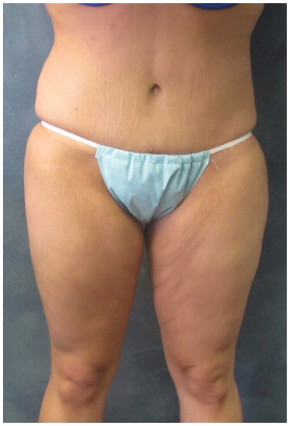Front View After Tummy Tuck