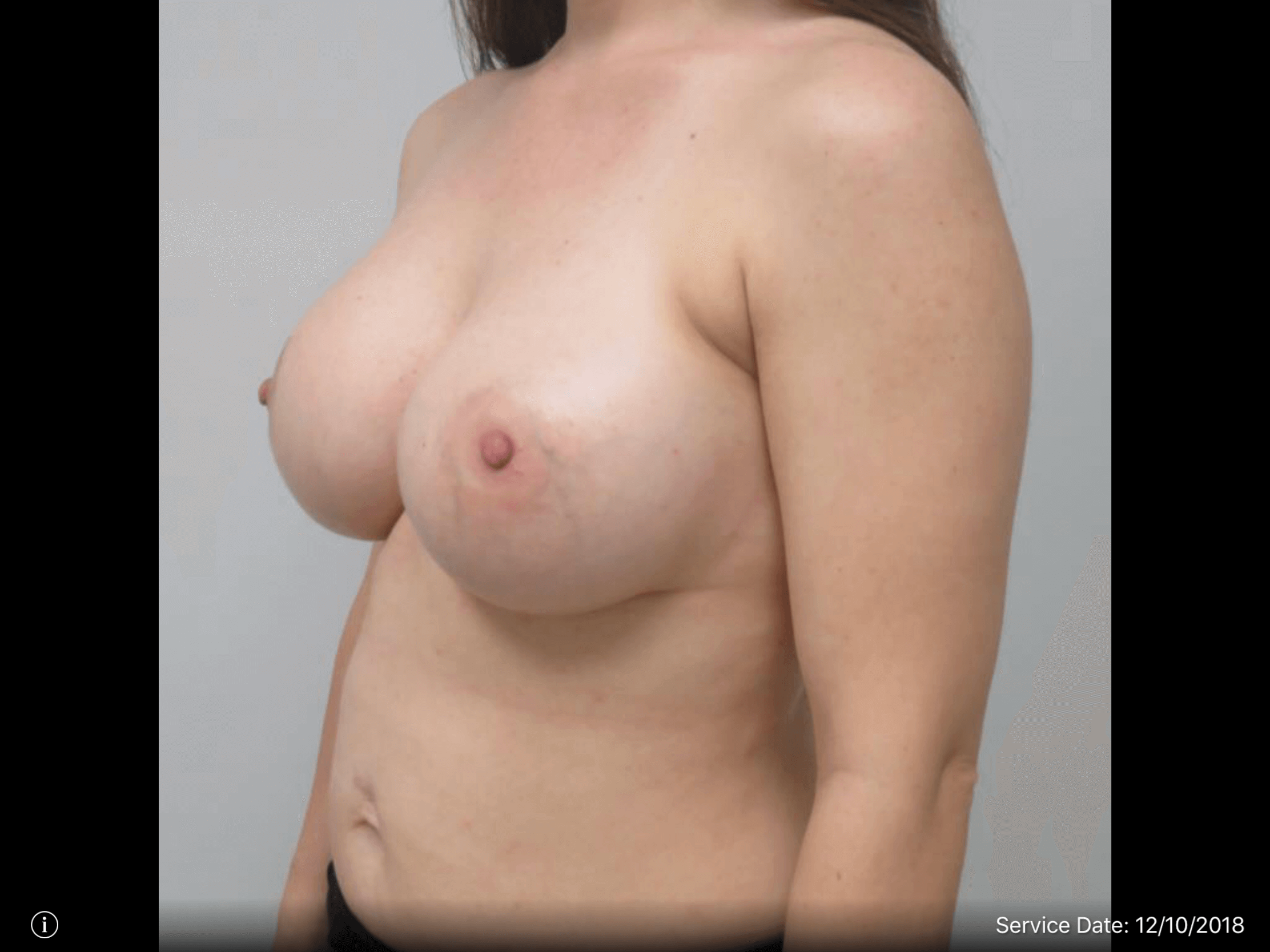 Partial Side View After Breast Augmentation